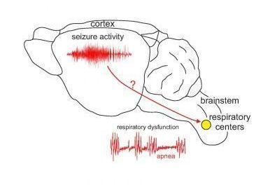 Epilepsia y muerte súbita ligadas a mal gen.