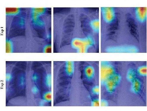 Inteligencia artificial para el diagnóstico de la COVID-19: análisis automático de radiografías simples de tórax