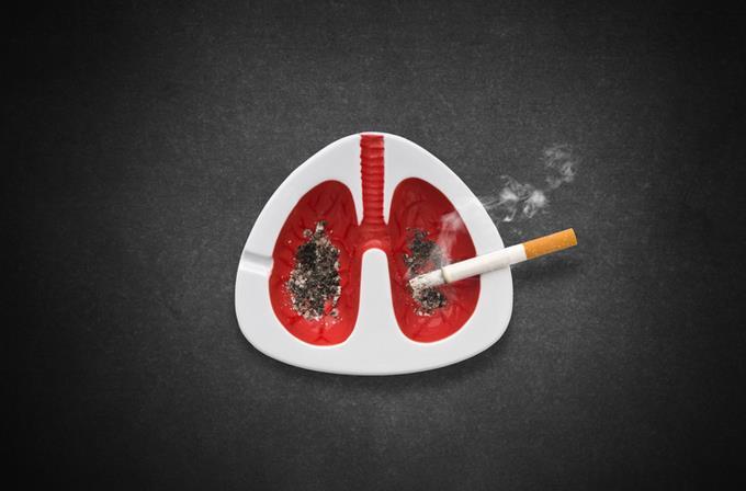 Cáncer de pulmón: situación en el mundo