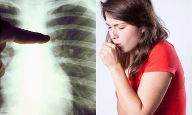 Tabaquismo, causa de cáncer de pulmón