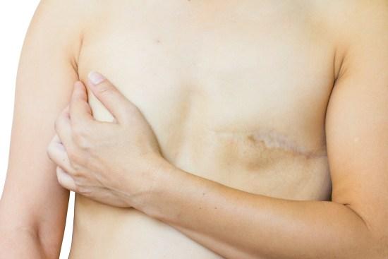 Kvinna som drabbats av bröstcancer Copyright: Tawatchai Khid-arn/Dreamstime.com