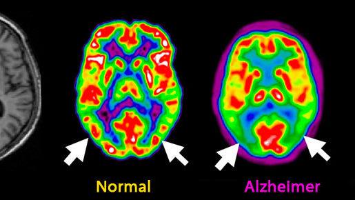 La prueba de Alzheimer predice su aparición con hasta 20 años de anticipación