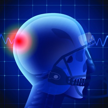 Concussion Program/Sports Injuries