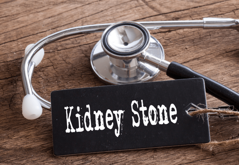 3 Best Foods For The Prevention of Kidney Stones