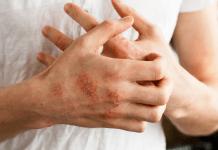 Eczema treatment tips