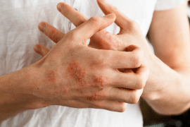 Eczema treatment tips