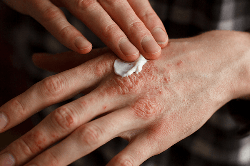 Common Causes of Eczema