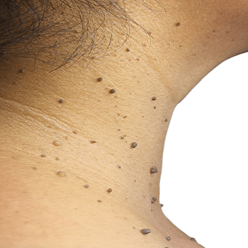 Home Remedies To Treat Skin Tags