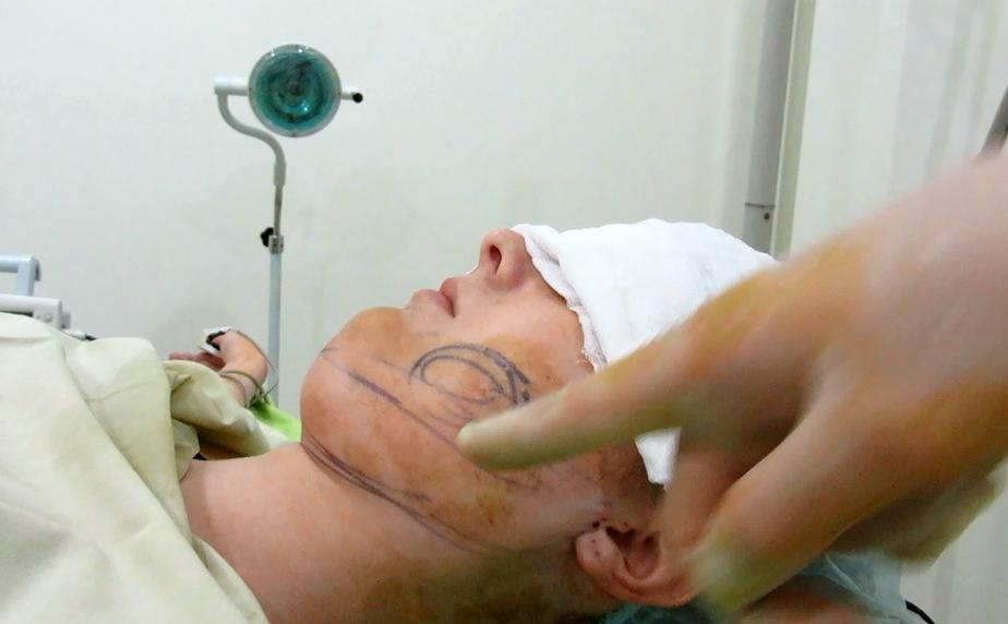 Before double chin neck liposuction by Dr Arthur Tjandra of Elixir de Vie.