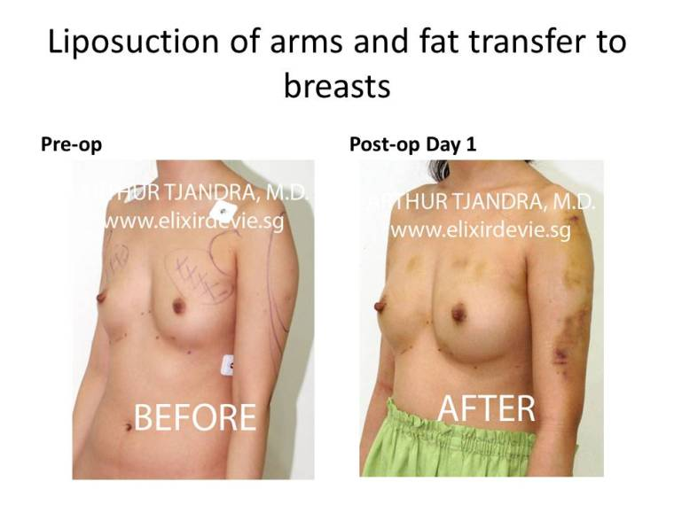 Arms liposuctiArms liposuction by Dr Arthur Tjandra of Elixir de Vie