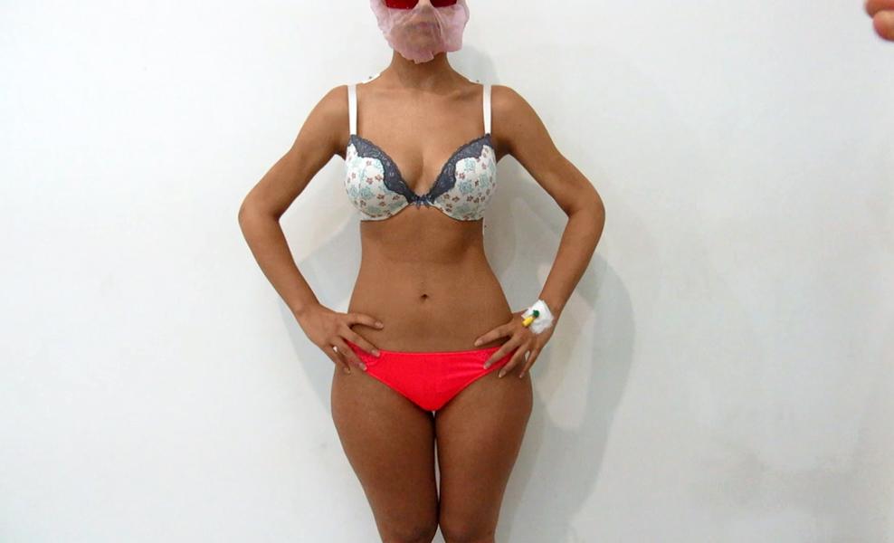 3D high-definition arms liposuction by Dr Arthur Tjandra of Elixir de Vie.