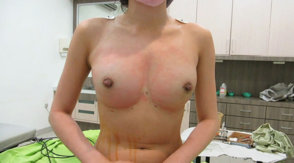 after fat transfer breasts augmentation