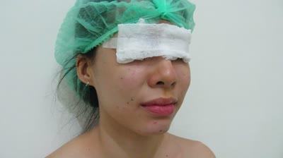 Fat injection facial rejuvenation by Dr Arthur Tjandra of Elixir de Vie
