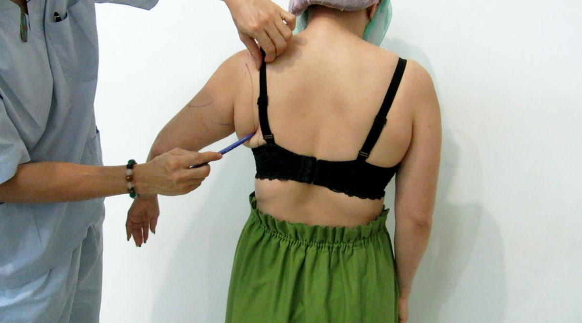before-3D-arms-liposuction-by-Dr-Arthur-Tjandra