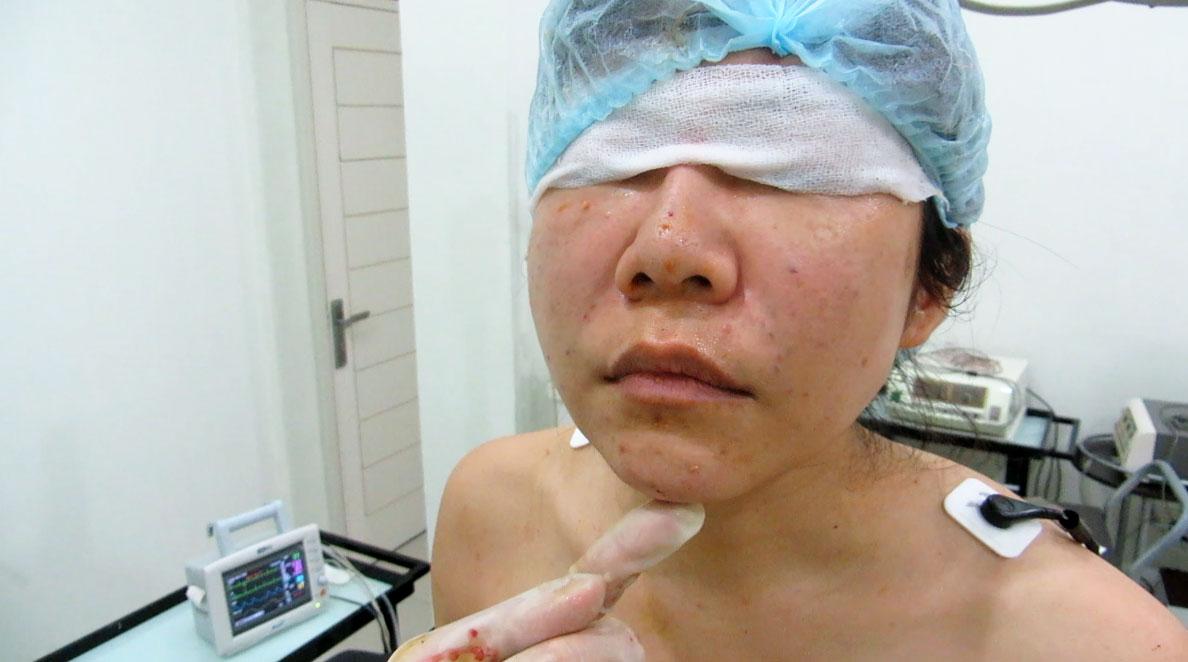 Autologous fat transfer nose and chin augmentation by Dr Arthur Tjandra of Elixir de Vie