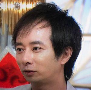 石田 薄毛-300x296