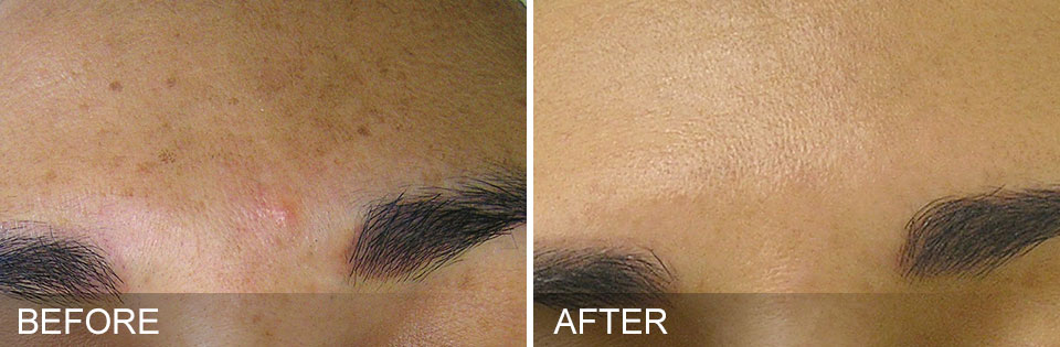 hydrafacial before and after photo brows