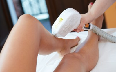 laser hair removal on woman's legs ellemes medical spa atlanta