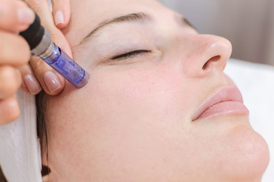 woman receiving microneedling treatment ellemes medical spa atlanta