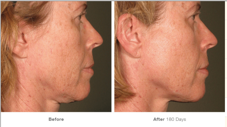 ultherapy woman before and after photos chin skin tightening ellemes medical spa atlanta