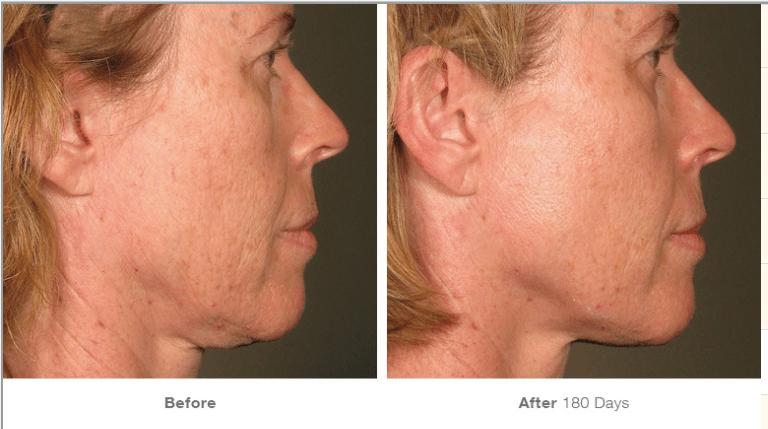 ultherapy woman before and after photos chin skin tightening ellemes medical spa atlanta