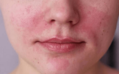 rosacea treatment atlanta medical spa