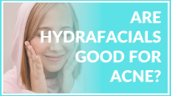 are hydrafacials good for acne? atlanta medical spa