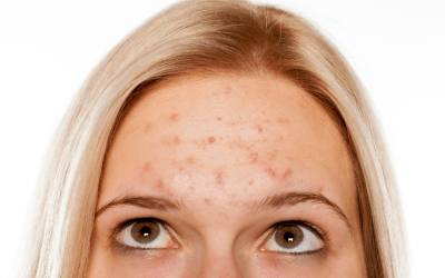 woman with acne on her forehead looking up atlanta medical spa