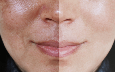 before and after melasma on patients face atlanta medical spa