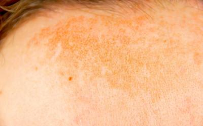 hyperpigmentation on forehead atlanta medical spa