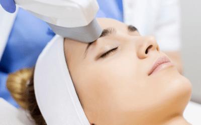 ipl photofacial laser treatment on woman