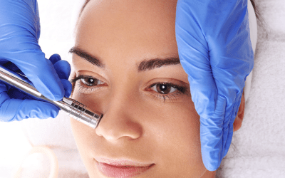 microdermabrasion woman