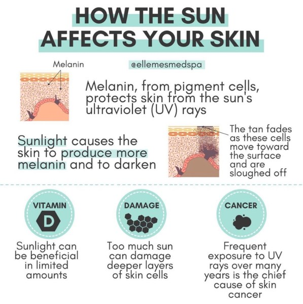 How the sun affects your skin infographic