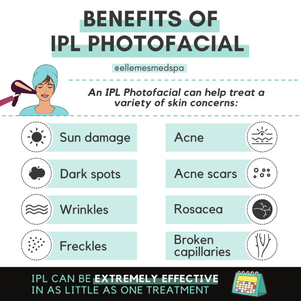Benefits of IPL photofacial illustration