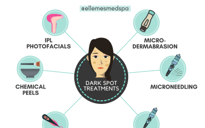 best-dark-spot-treatment-options