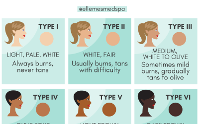 which fitzpatrick skin type are you infographic