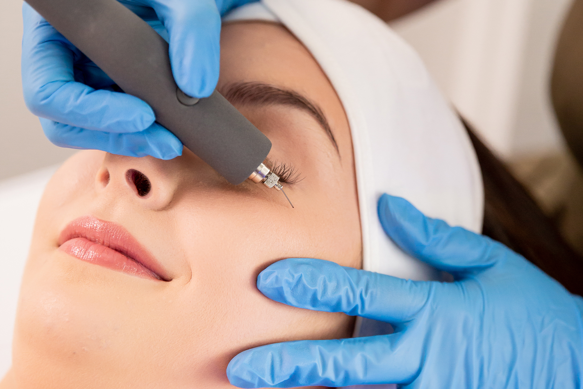 subnovii plasma pen treatment