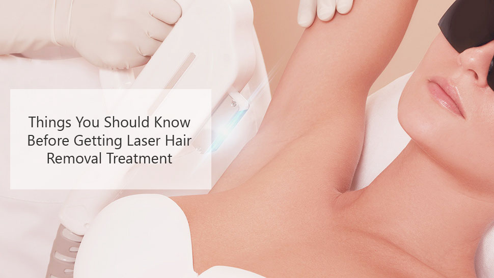 Things You Should Know Before Getting Laser Hair Removal Treatment