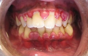 """Gingivitis (crop)"" by Lesion - Own work. Licensed under CC BY-SA 3.0 via Wikimedia Commons - http://commons.wikimedia.org/wiki/File:Gingivitis_(crop).jpg#/media/File:Gingivitis_(crop).jpg"