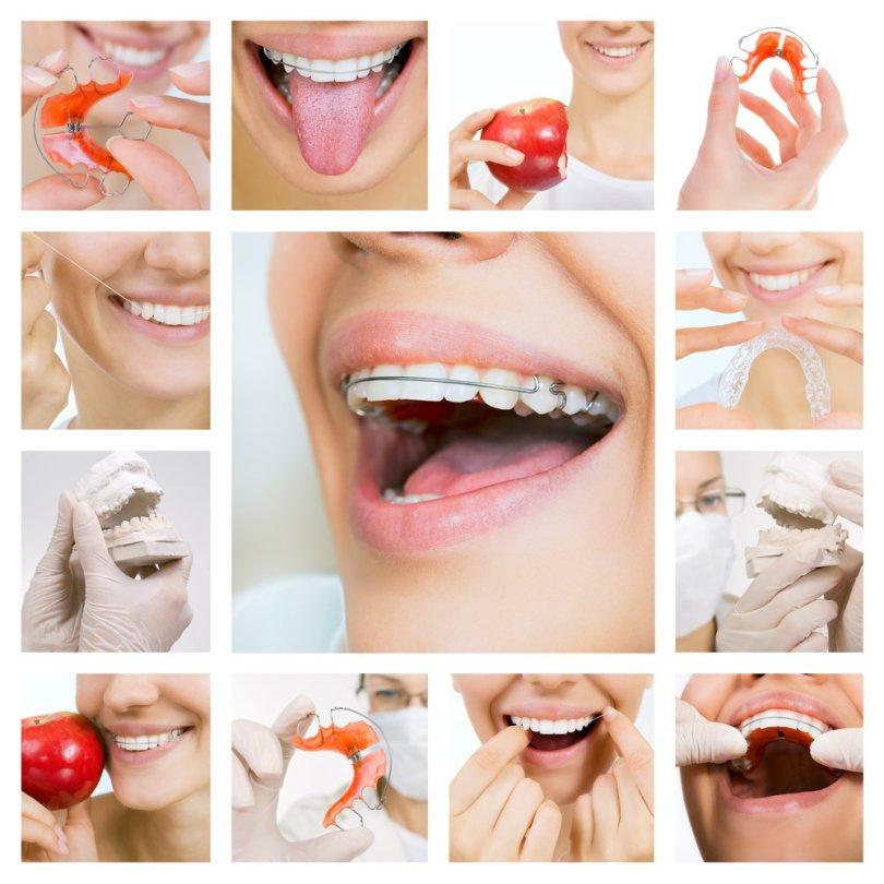 جهاز تثبيت الأسنان