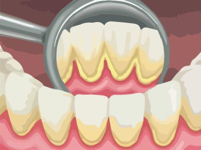 ازالة الجير من الاسنان