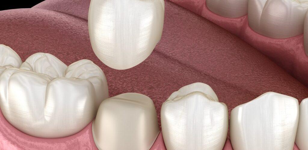 الم الاسنان بعد التركيب