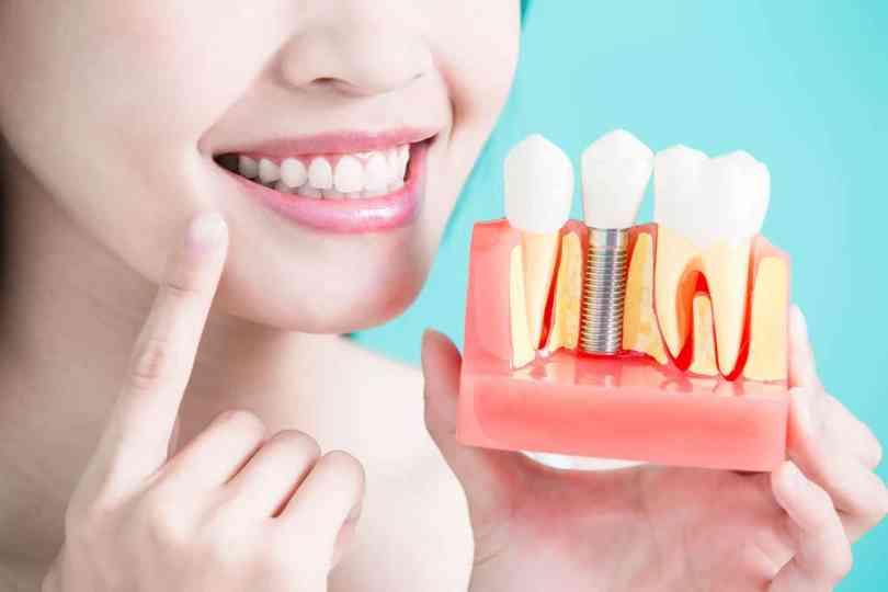 اسعار زراعة الاسنان