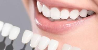 طريقة تبييض الاسنان