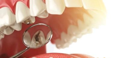 كيف ازيل تسوس الاسنان
