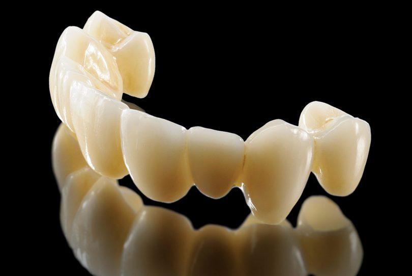 تلبيس الاسنان الامامية