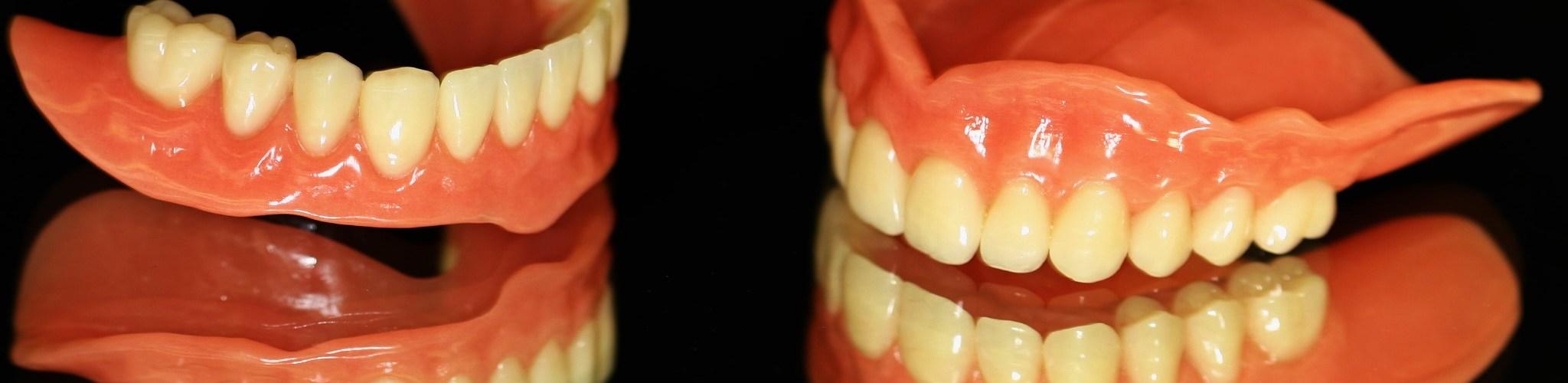مدة تركيب الاسنان بعد الخلع