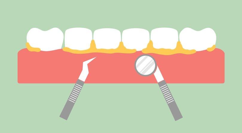هل ازالة الجير من الاسنان مؤلم