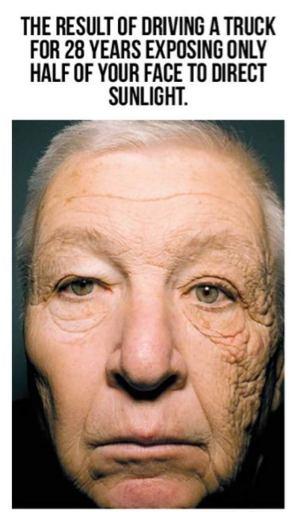 Efectos de la exposición al sol directa por 28 años.