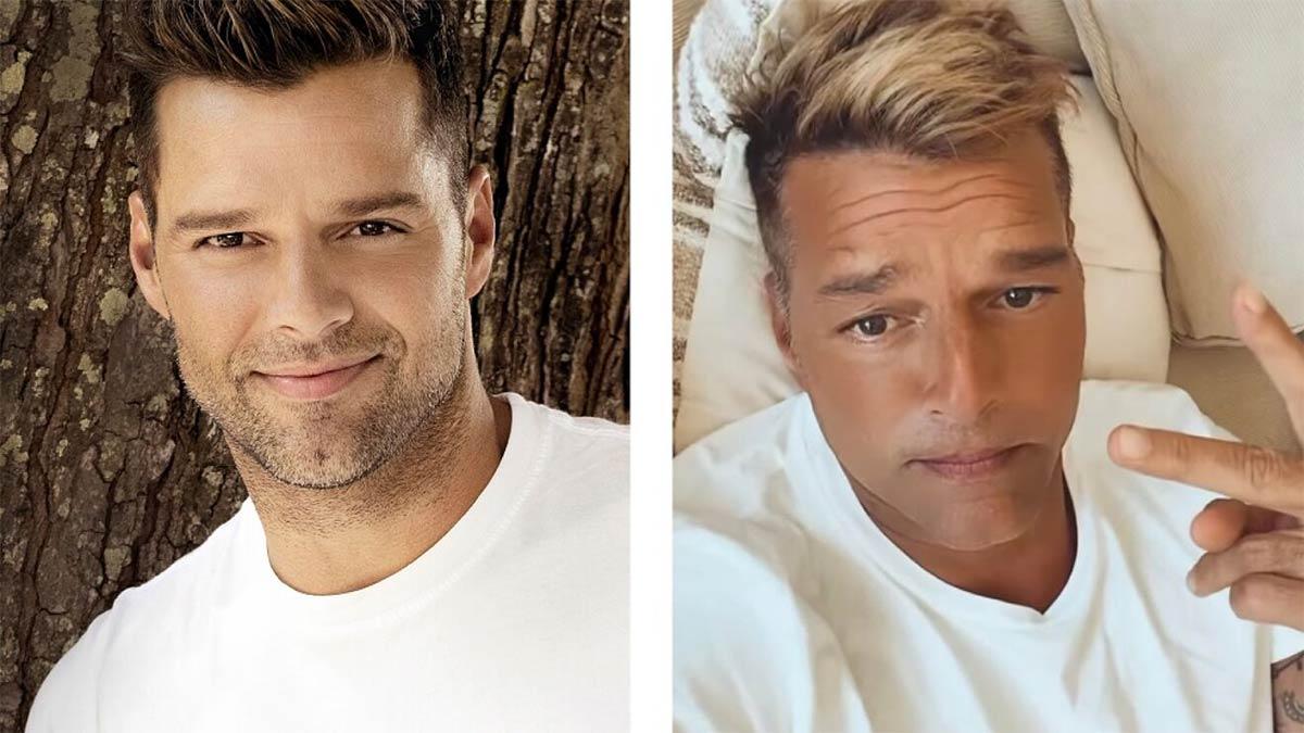 Ricky-Martin-rostro